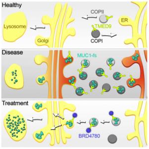 ADTKD - dědičné chronické onemocnění ledvin