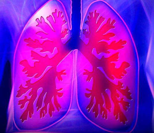 Sekce pro intersticiální plicní procesy SIPP