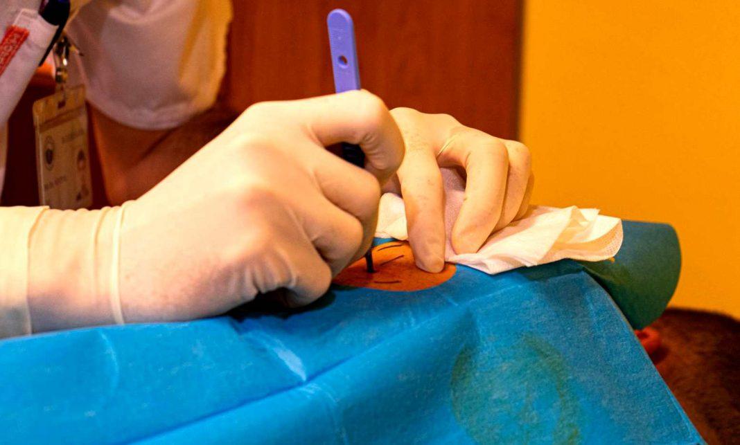 Podkožní senzory pro diabetiky